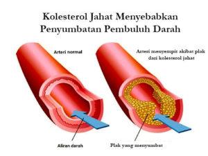 K Muricata Amazon Berries Obat Herbal Asam Urat Kanker Stroke Jantung