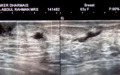 Testimoni Sembuh Kanker Payudara
